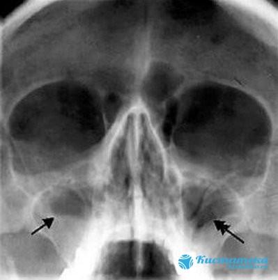 Перед операцией проводят рентген пазу