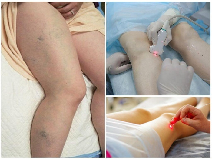 Лечение лазером варикоза вен на ногах