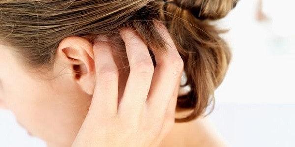 дерматит в волосах