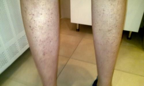 Проблема вросших волосков на ногах