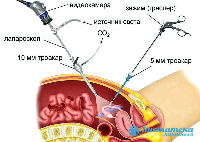 Лапароскопия подразумевает точечные проколы в области брюшины