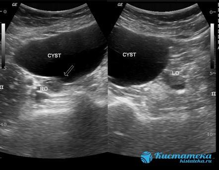 С помощью вагинального УЗИ определяется как опуолеподобное, овоидной формы образование