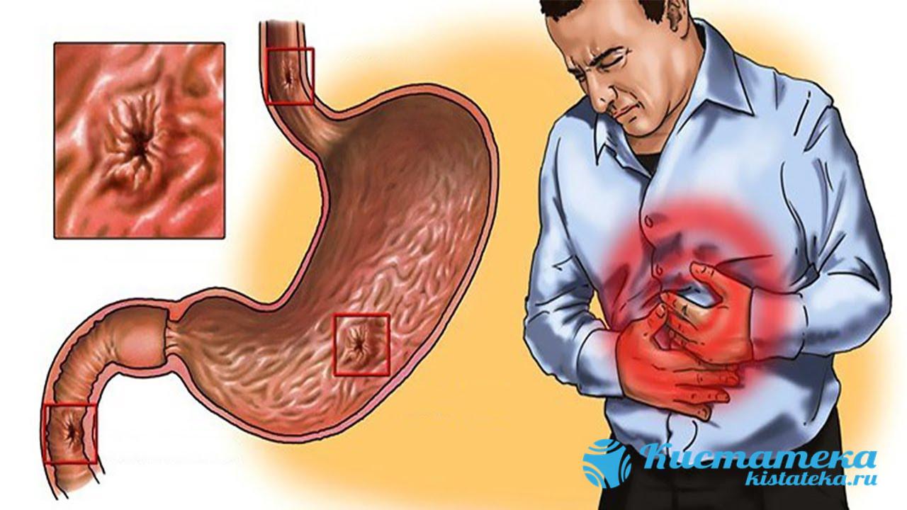 Воспалительные процессы в виде гастрита