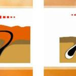 Удаление волос при шугаринге