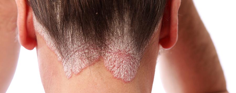 дерматит под волосами