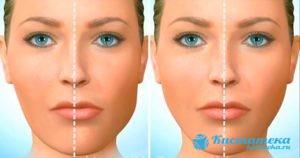 Проявляется асимметрия лица
