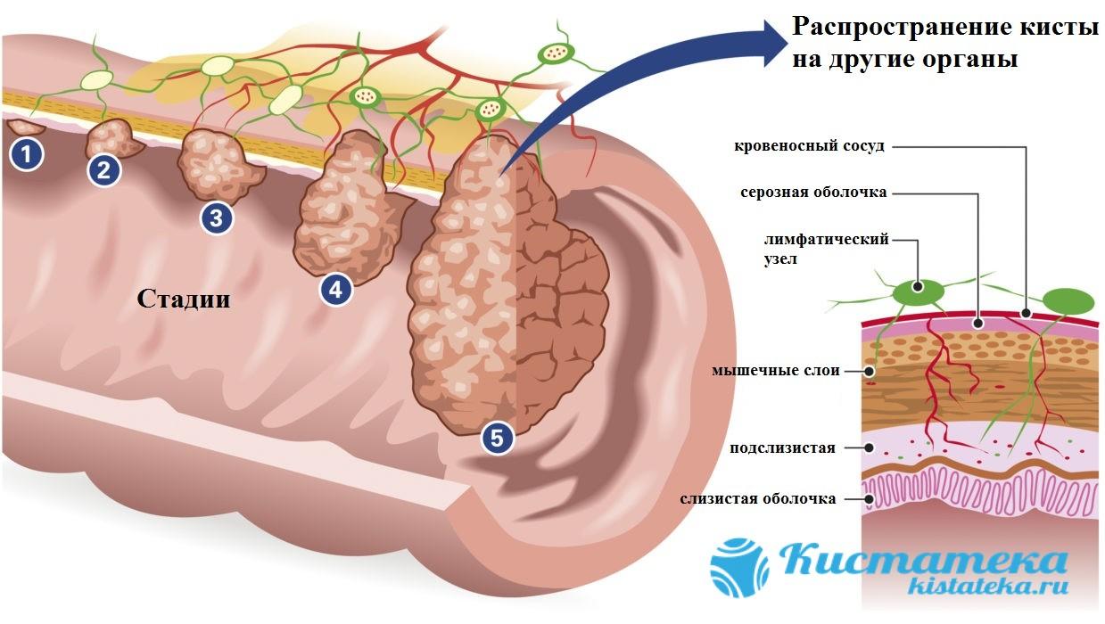 Стадии роста опуоли