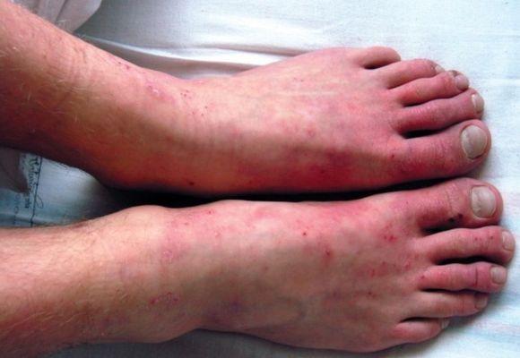 Заболевание кожи нижних конечностей