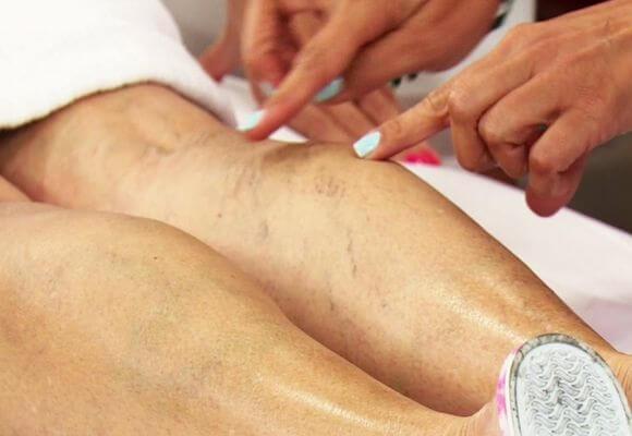 ноги с воспаленными венами