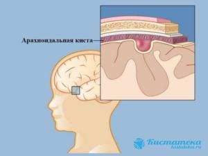 Образование формируется при меанически повреждения, травма затылка и ушиба.