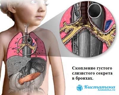 У детей именно кистозный фиброз - частая причина патологии