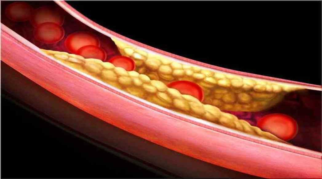 Ранние стадии развития заболевания характеризуются отсутствием симптоматики