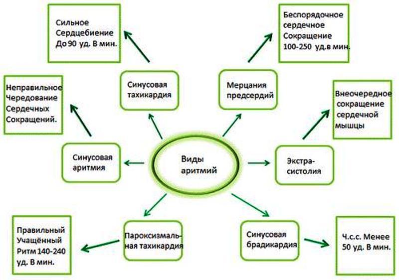 Виды и симптомы аритмий