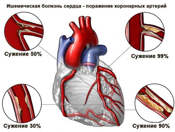Патология развивается из-за того, что уменьшается приток крови к сердцу, так как коронарные артерии сужаются