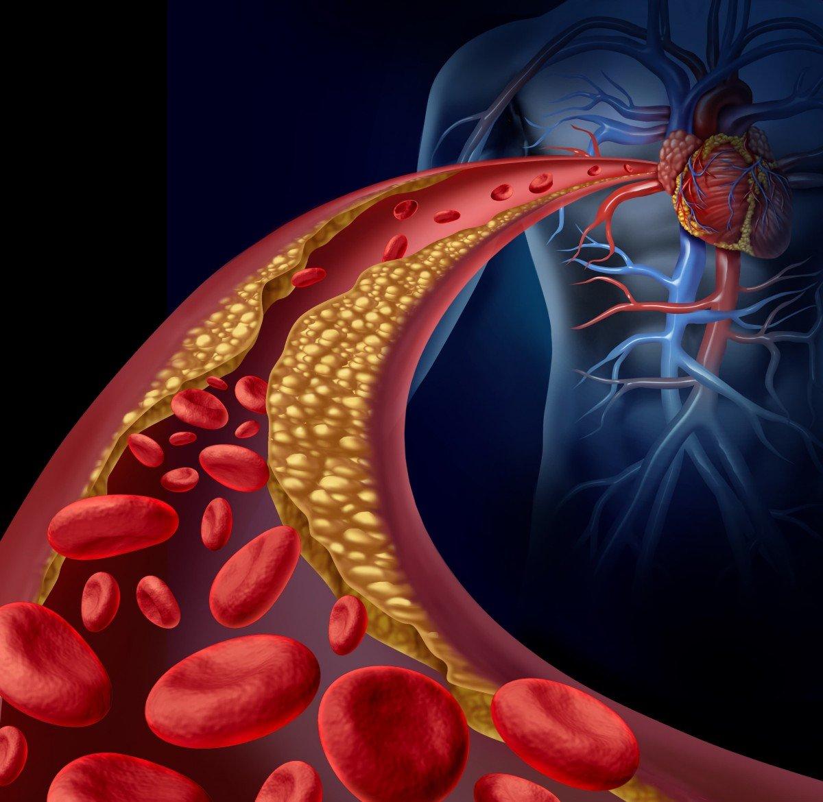 Препарат оказывает воздействие на уровень низкоплотных липопротеидов