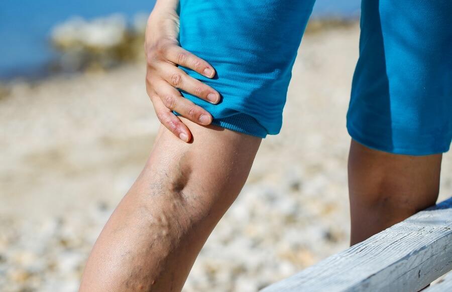 Вздувшиеся синюшные вены на ногах при варикозе