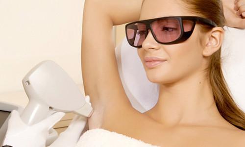 Удаление волос с помощью лазера