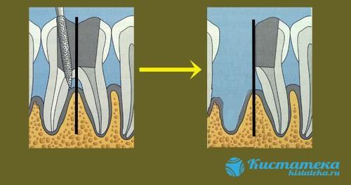 Зубной корень удаляется вместе с поврежденными элементами
