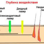 Глубина воздействия различных видов лазера