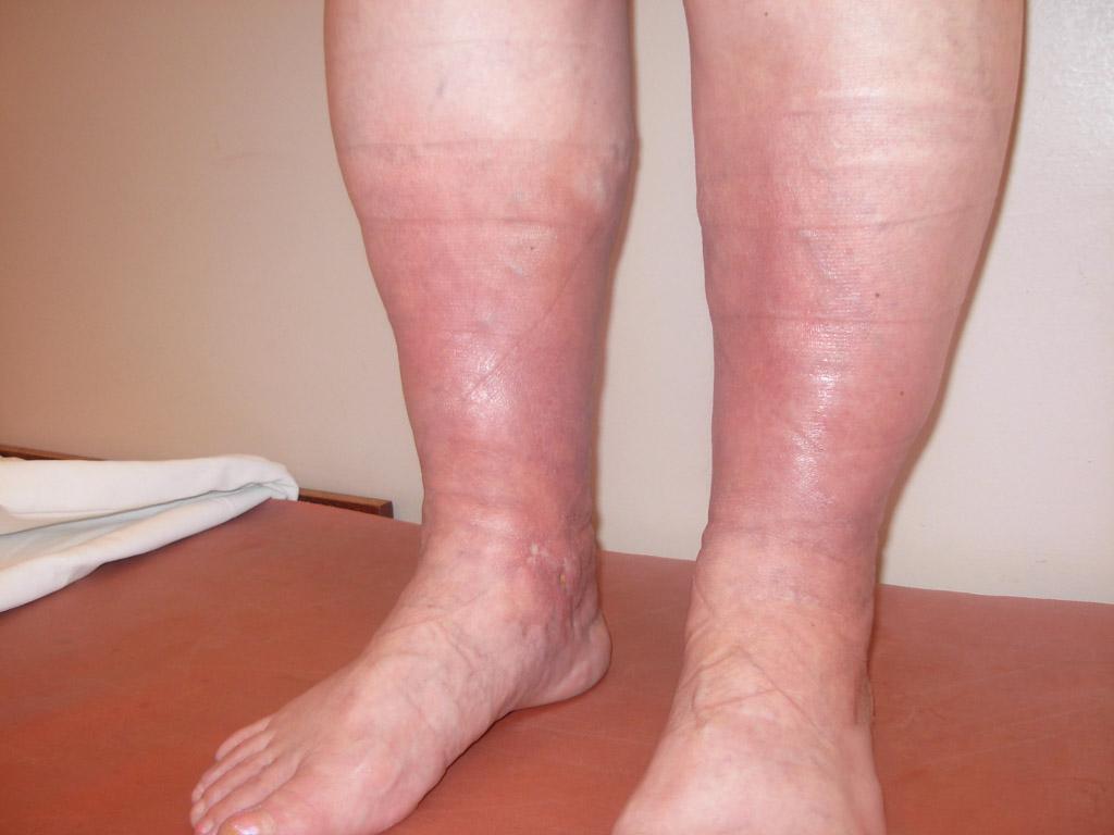 Отек ног при тромбофлебите
