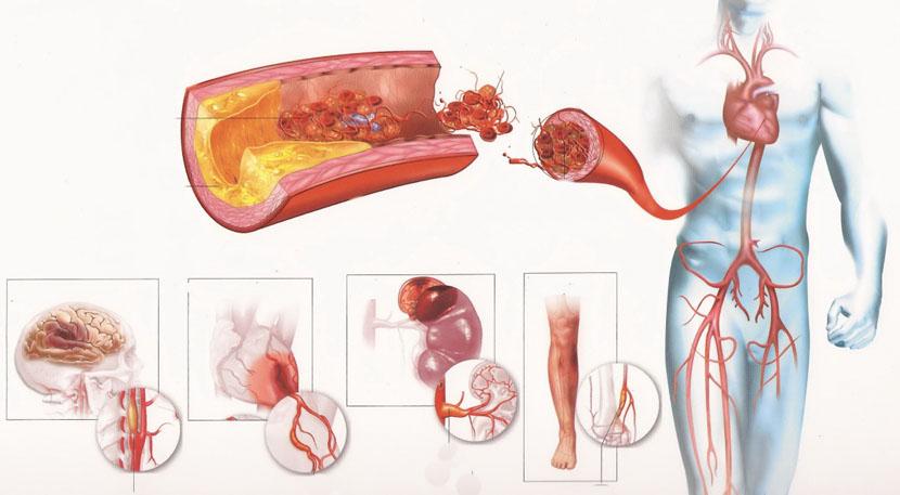 ateroskleroz_aorty