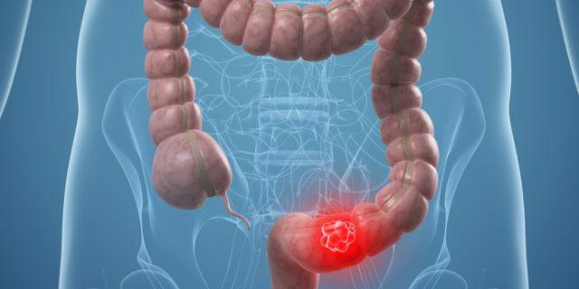 Заболевание может протекать с компенсацией, субкомпенсацией и декомпенсацией кровотока