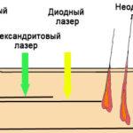Глубина воздействия разных лазеров