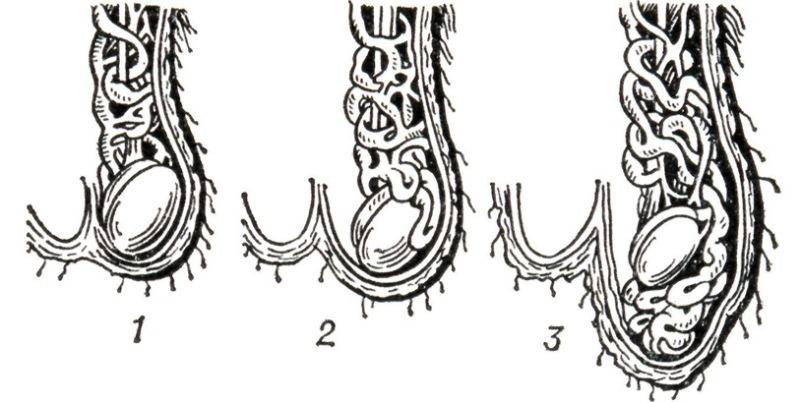 Степени развития расширения вен в мошонке