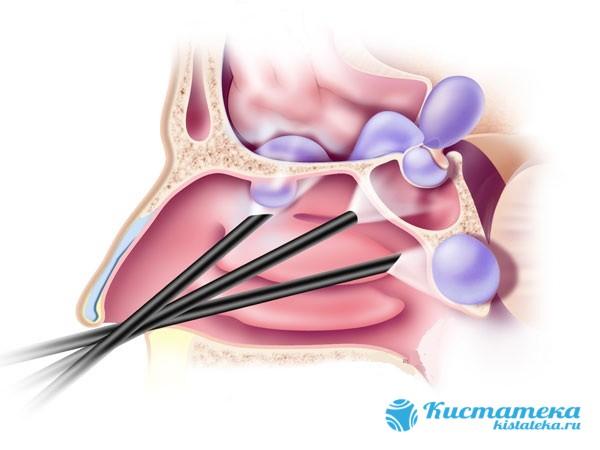 Размеры опуоли могут увеличиваться до внушительны объемов