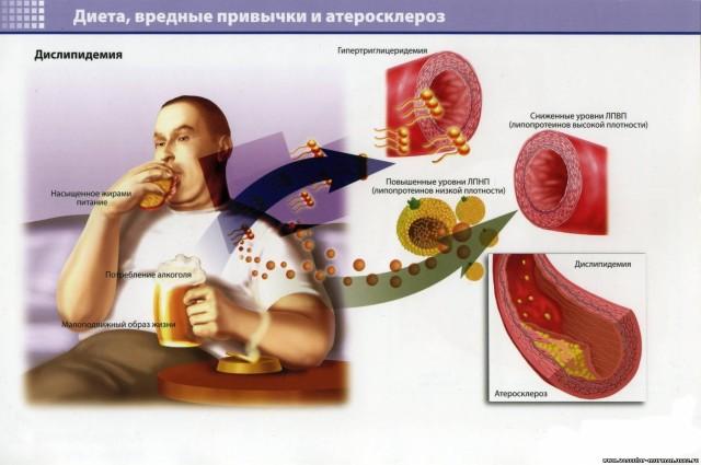 Для эффективного лечения питание при варикозе должно быть модифицировано уже на стадии компенсации, при появлении первых признаков