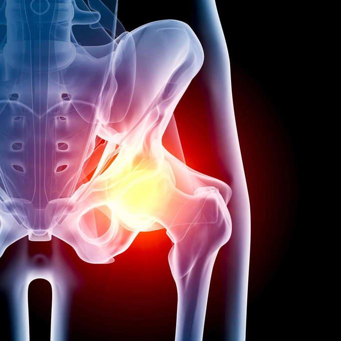 лечение тазобедренного сустава от остеохондроза
