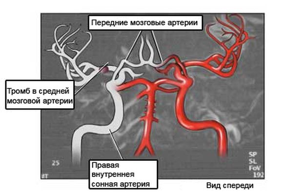 Магнитно-резонансная ангиография