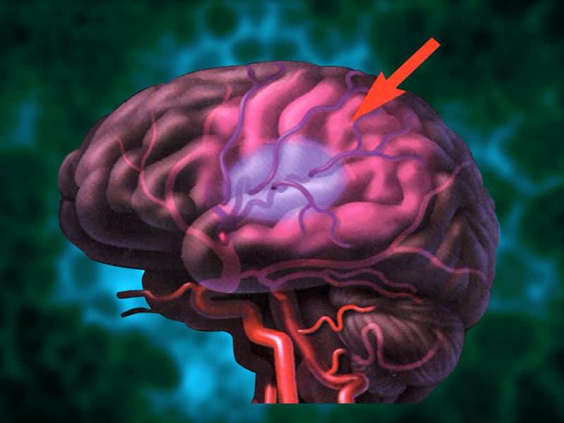 Пораженный участок мозга