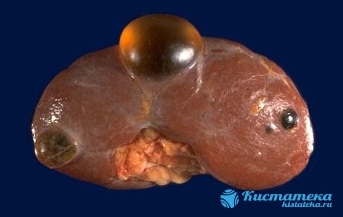 Внутри тонкостенного полого образования наодится капсула, заполненная жидким или полужидким экссудатом