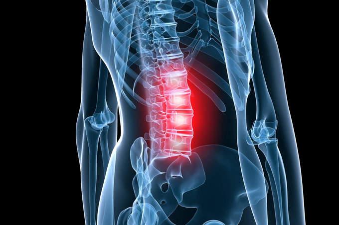 что делать если обострился остеохондроз
