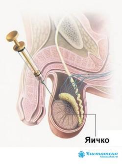 Проведение склеротерапии яичка