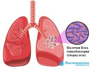 Риск опуоли в легком повышается при туберкулезе