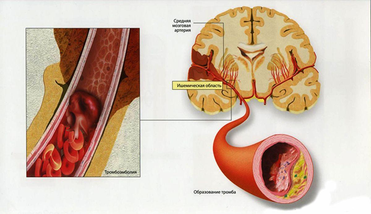 Сонные артерии – одни из самых важных сосудов