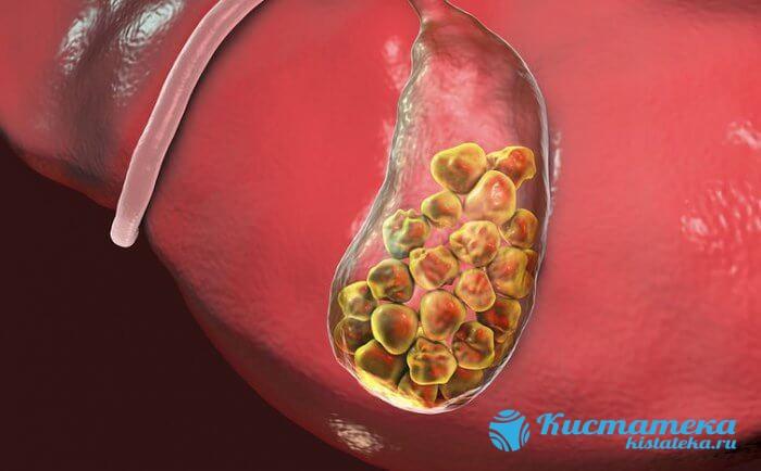 Основная причина назначанеия процедуры — желчнокаменная болезнь