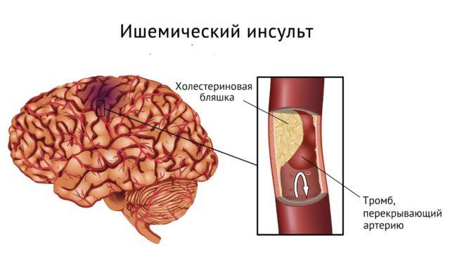 Согласно статистике, растет процент случаев нарушения мозгового кровообращения, происходящих у совсем молодых людей