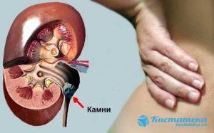 Такие опуоли провоцируют развитие мочекаменной болезни