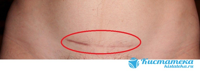 Шрам после лапаротомии при удалении большой кисты