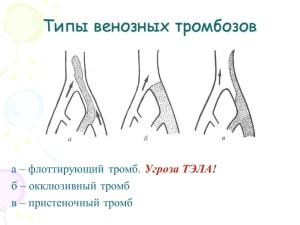 Какие бывают тромбозы глубоких вен?