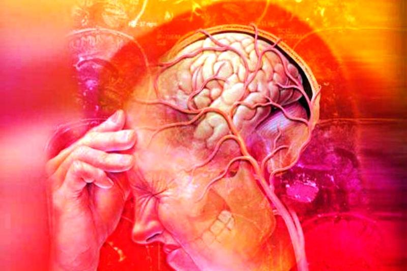 Соматоформная дисфункция