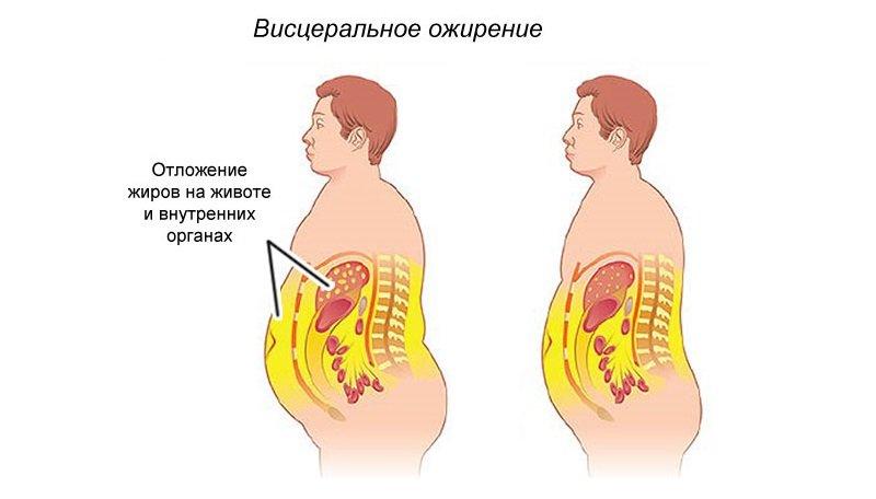 Чаще всего страдает именно брюшная полость. Заметить мужчину с ожирением можно по выпирающему животу.