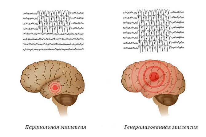 Парциальная и генерализованная эпилепсия