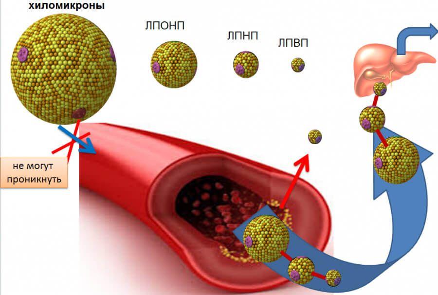 Критически низкие показатели ЛПОНП и ЛПНП могут свидетельствовать о наличии гиперфункции щитовидной железы, онкологии крови, ХОБЛ
