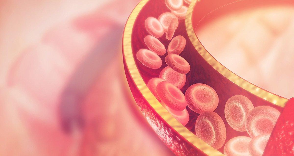 Нужно уменьшать количество плохого холестерина и увеличивать количество хорошего
