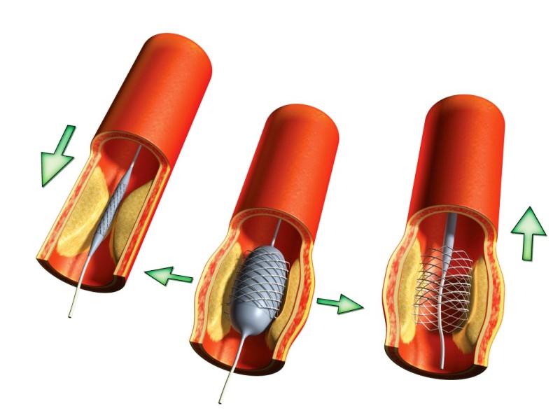 Схема проведения ангиопластики