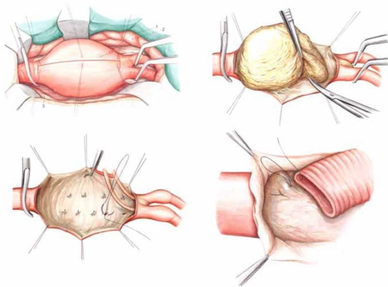Операция на брюшной аорте